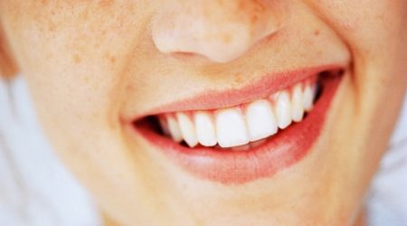 Invisalign   How it works, what it costs and how it compares